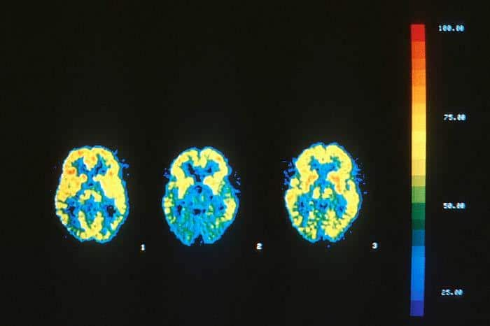 Imágenes que muestran la evolución de la demencia en un paciente