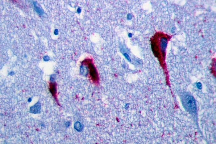 Placas amiloideas en el cerebro de un enfermo de Alzheimer