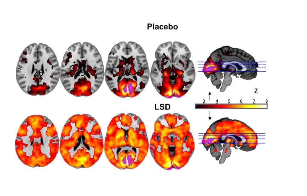 Activación cerebral bajo los efectos del LSD