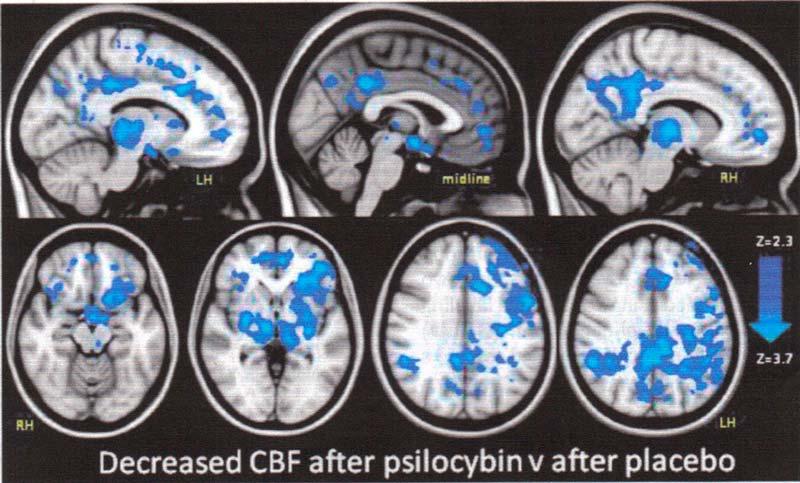 escaner cerebral