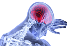 brain, inflammation, stroke